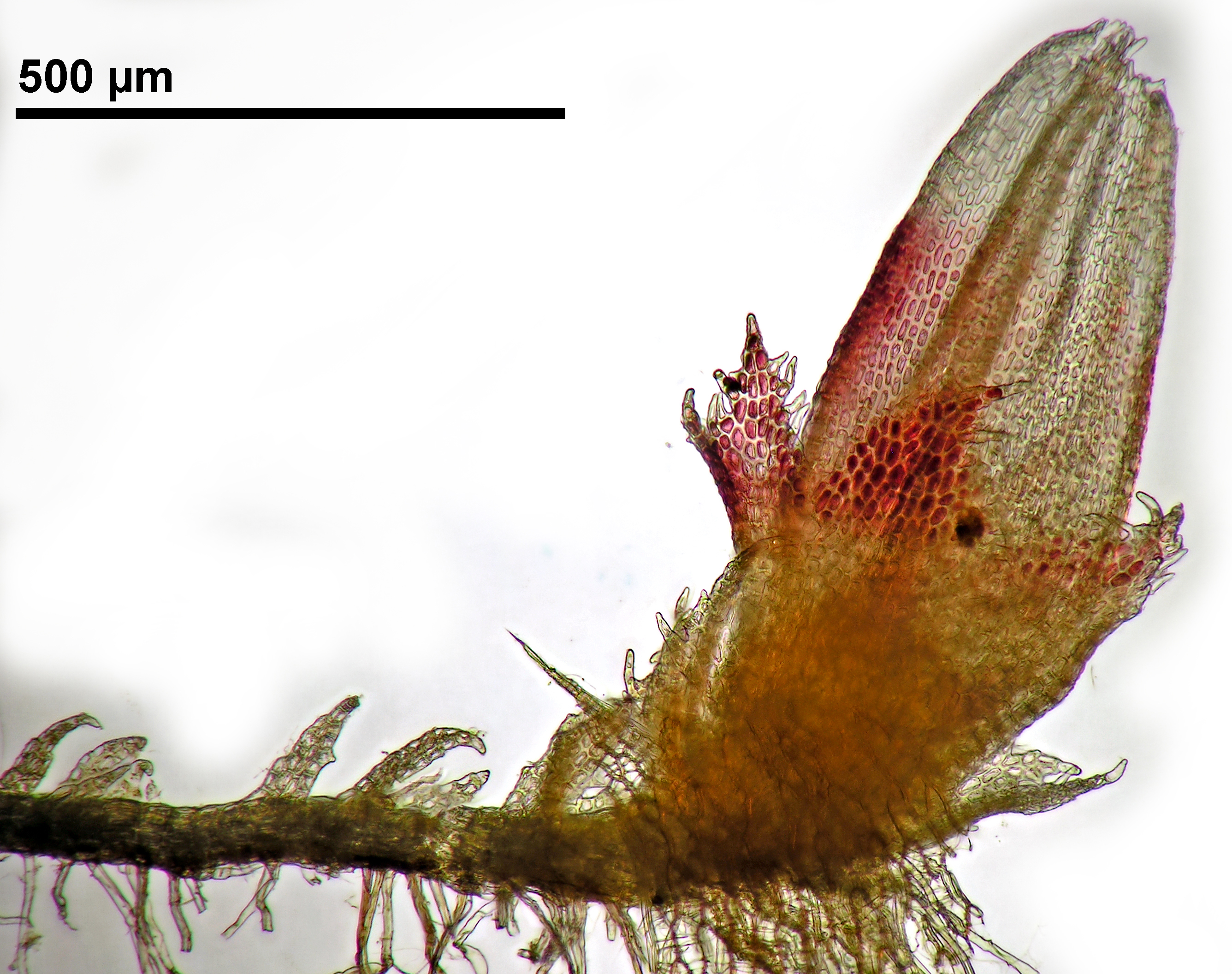Cephaloziella spinigera - gynoecium